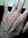 Hand_071006_1